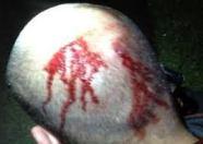 Zimmerman head flow