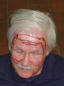 3 - Phil - Bleeding Close Up_1463788631916_38684646_ver1.0_640_480